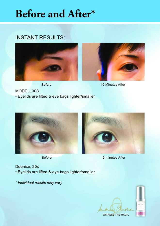 EyeGel_Before After